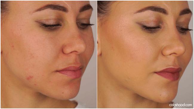 comment faire disparaitre un bouton avec du maquillage