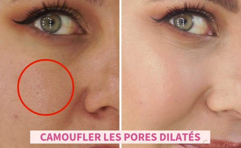 maquillage pores dilatés